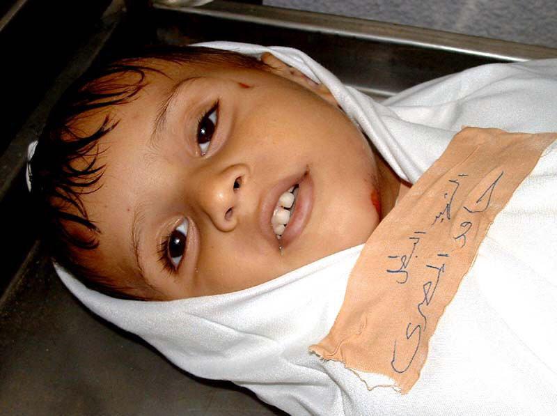 صورة طفل مات ولم يمت